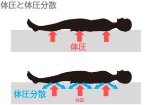 体圧と体圧分散
